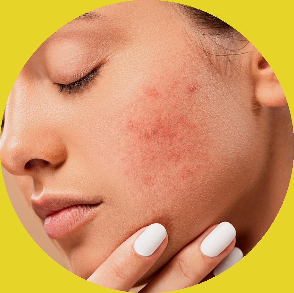 laitde chamelle dermatologie
